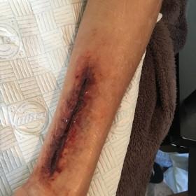 Blade wound