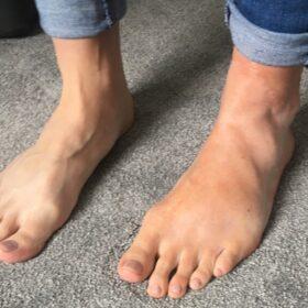Foot prosthetic
