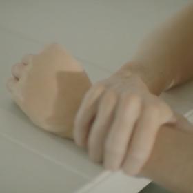 Puffy hand